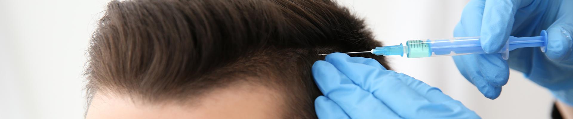 Tipps nach einer Haartransplantation - KÖ-HAIR